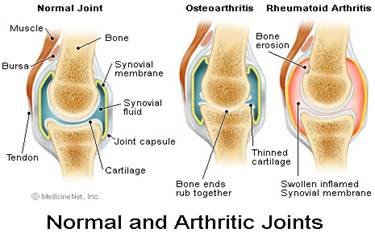 Arthritis,  kilvatam, muttu vali, joint pain, back pain