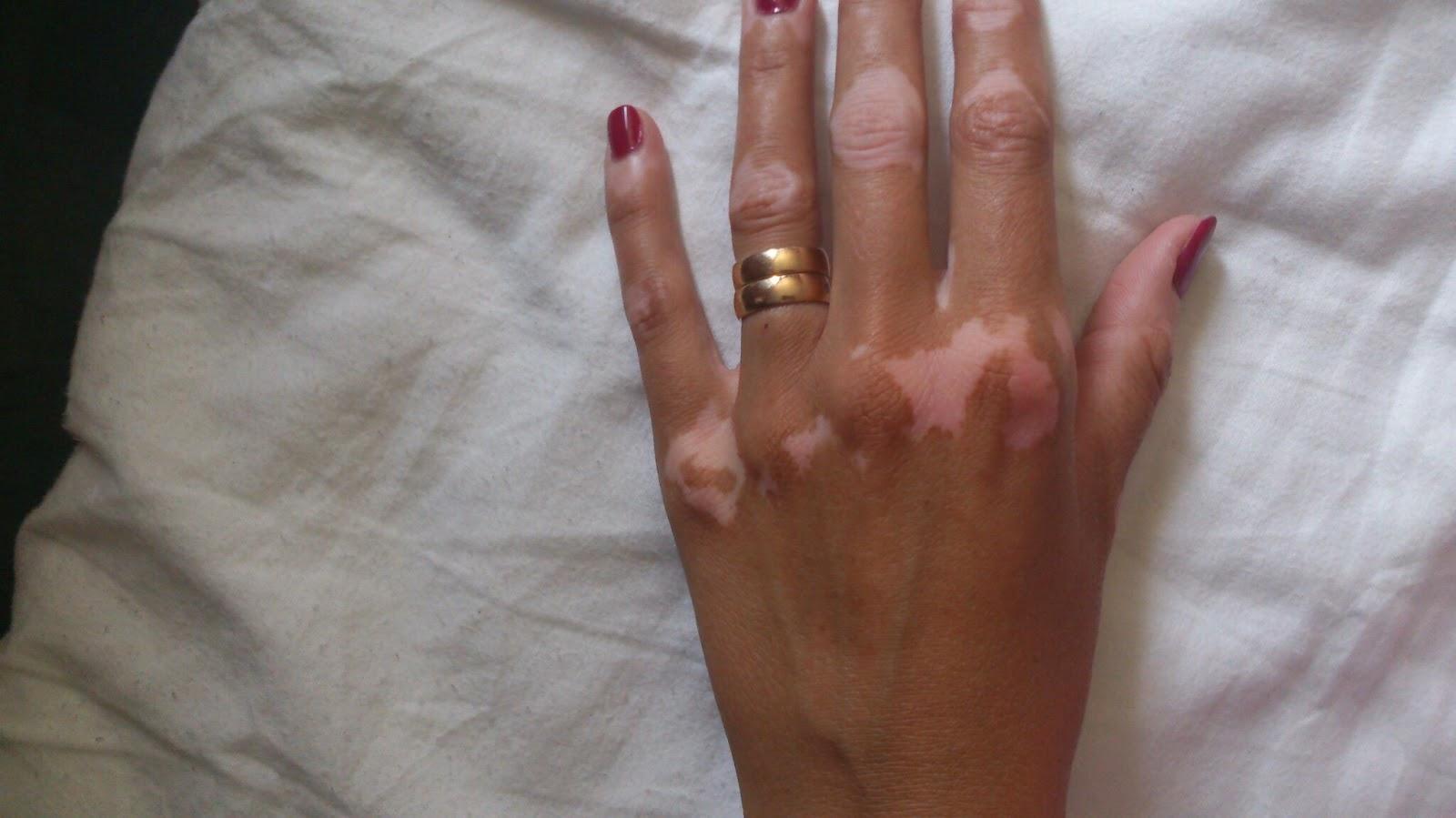 vita fläckar på händerna
