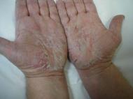 El ungüento para el tratamiento de la eccema en los pies
