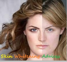 Skin Whitening Advices