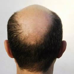 Cara menumbuhkan rambut secara alami yang sudah botak dengan menggunakan Ginkgo Biloba