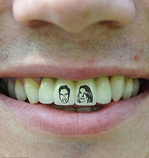TheFacemash Post - Seorang Tukang Ledeng Mentato Gigi depannya Dengan Tato Gambar Pangeran William dan Kate Middleton