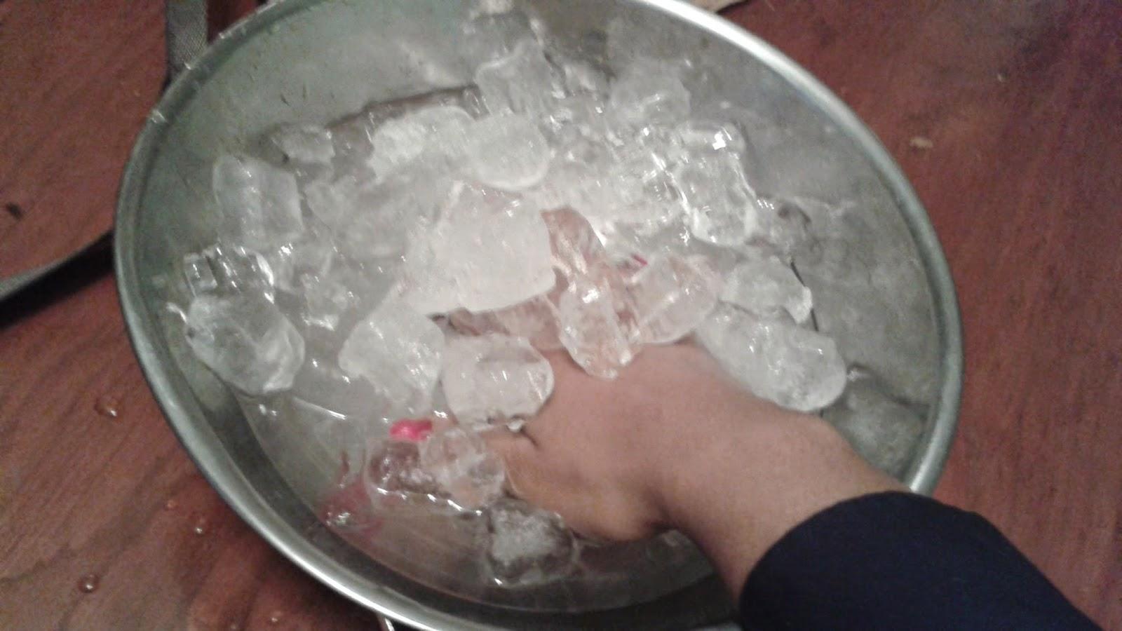 dedo inflado en hielo / inflamed finger put on ice