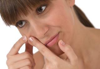 Tips mencegah / mengatasi timbulnya Jerawat