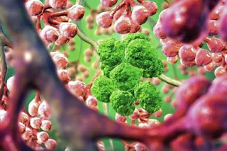 Τέλος οι χημειοθεραπείες! Αυτή είναι η νέα μέθοδός καταπολέμησης του καρκίνου