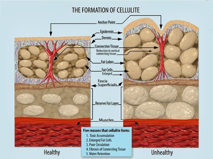 Cellulite - Taking a deeper look