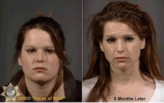Crystal Meth Addiction Effect | Drug Rehab Tips