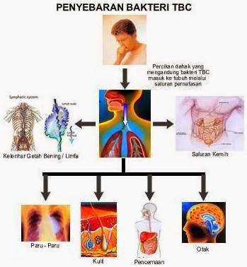 Solusi Pengobatan Penyakit TBC Secara Alami