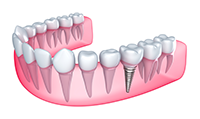Titanium Replacement Tooth