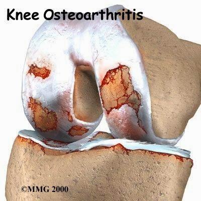 خشونة الركبة, أسبابها وكيفية علاجها