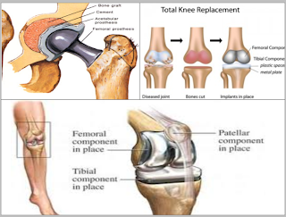 http://www.toshhospitals.com/joint-replacement.php