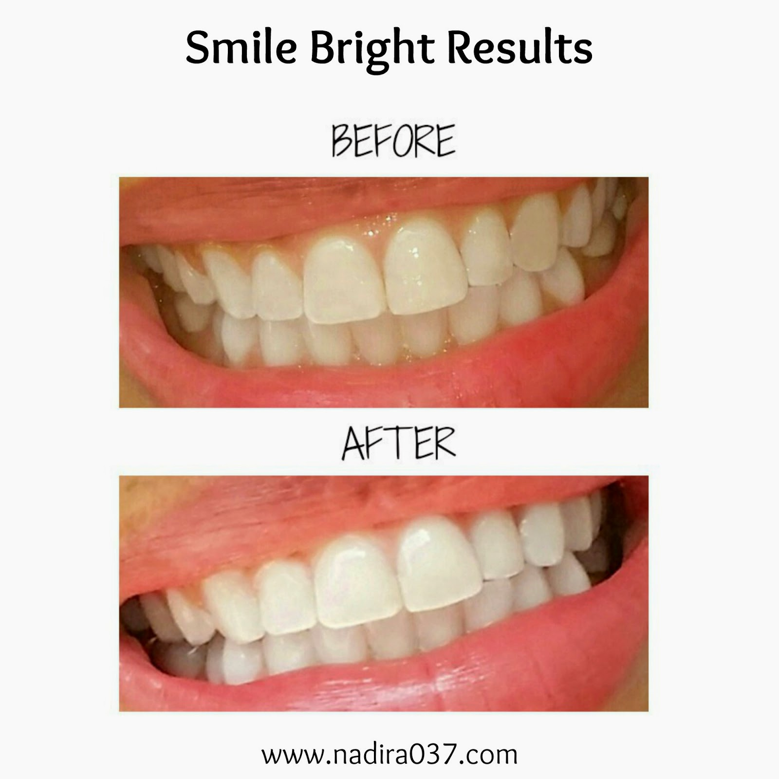 smile bright teeth whitening smile bright teeth whitening ...
