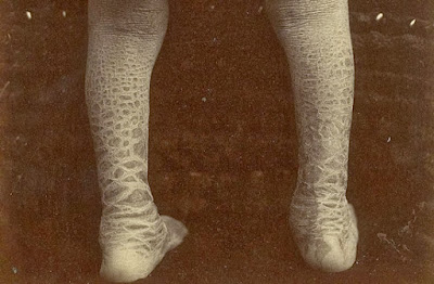 Ichthyosis Treatment: What Is Ichthyosis?