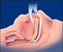 Can untreated sleep apnea cause weight gain