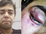 Ator é vítima de ataque homofóbico no Rio de Janeiro e tem visão comprometida