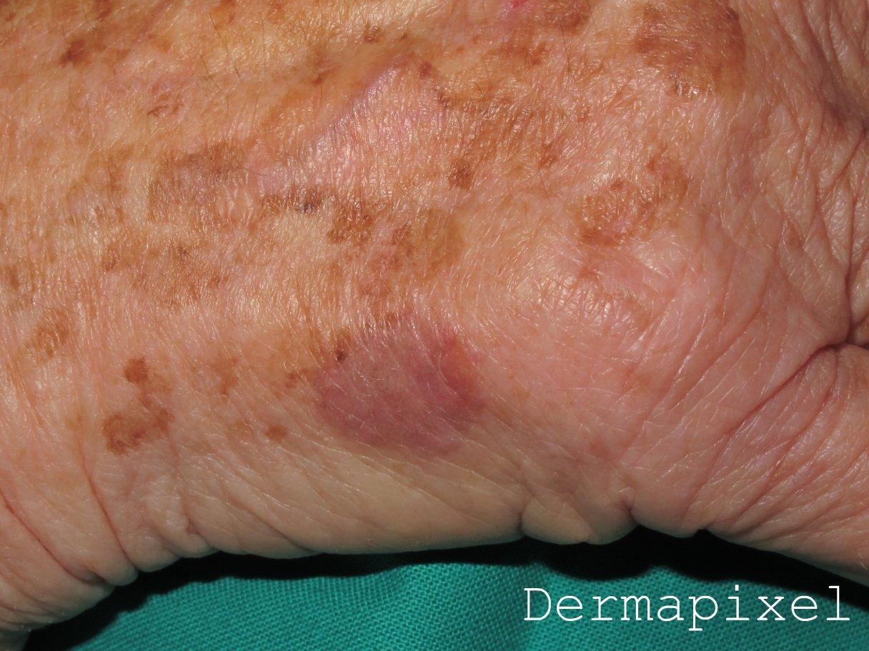 El tratamiento del hongo de la uña de los pies el foro