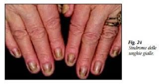 mani con sindrome delle unghia gialle