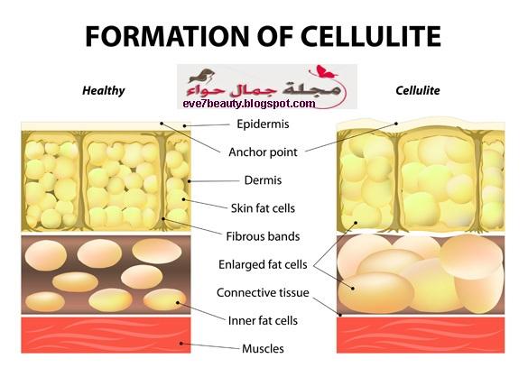 وصفة دكتور اوز للسيلوليت - وصفة للسيلوليت - وصفة القهوة للسيلوليت - وصفة طبيعية للسيلوليت - وصفه طبيعيه للسيلوليت - وصفة فعالة للسيلوليت - افضل وصفه للسيلوليت
