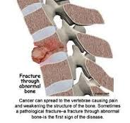 Cara Mengobati Kanker Tulang