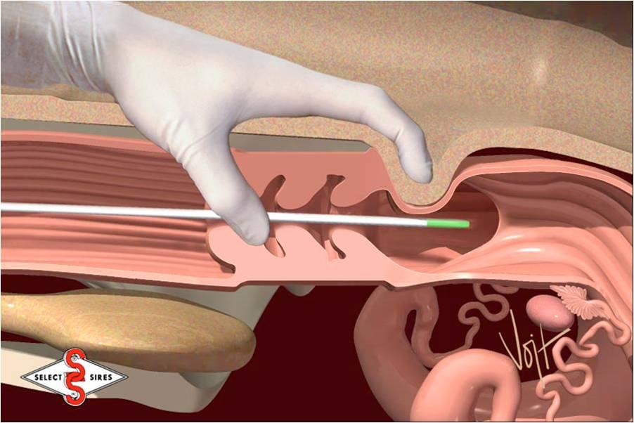 proniknovenie-spermatozoida-v-sheyku-matki