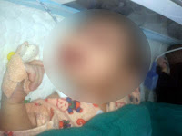 Shocking incident, Man tried to kill  baby girl ,Wynchpet, Girl child , Infant's cry, , Neighbours,  P Arjuna,  Lakshmi , Government general hospital