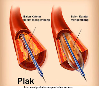 Penyakit Jantung Koroner, Gejala, Penyebab, Pencegahan