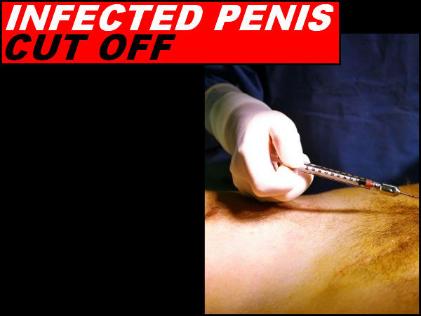 stories common penis enlargement surgery