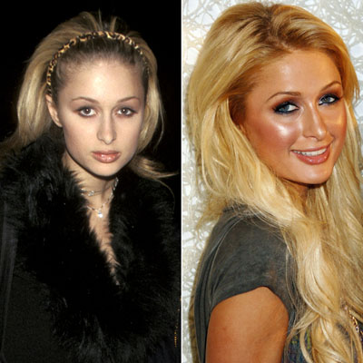 chatter busy paris hilton plastic surgery