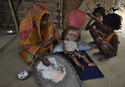 Photos of Roona Begum, a hydrocephalus patient