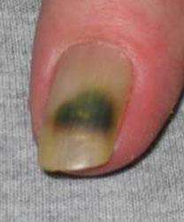 Let S Discuss Those Green Spots Underneath Your Nails