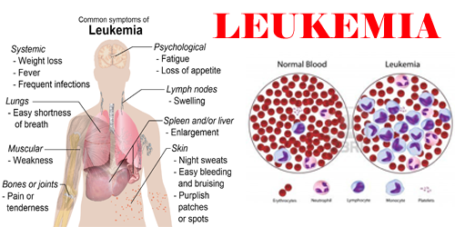 an analysis of the leukemia as a cancer of the blood system Adult acute myeloid leukemia (aml) is a type of cancer in which the bone marrow makes abnormal myeloblasts (a type of white blood cell), red blood cells, or platelets normally, the bone marrow makes blood stem cells (immature cells) that become mature blood cells over time a blood stem cell may .