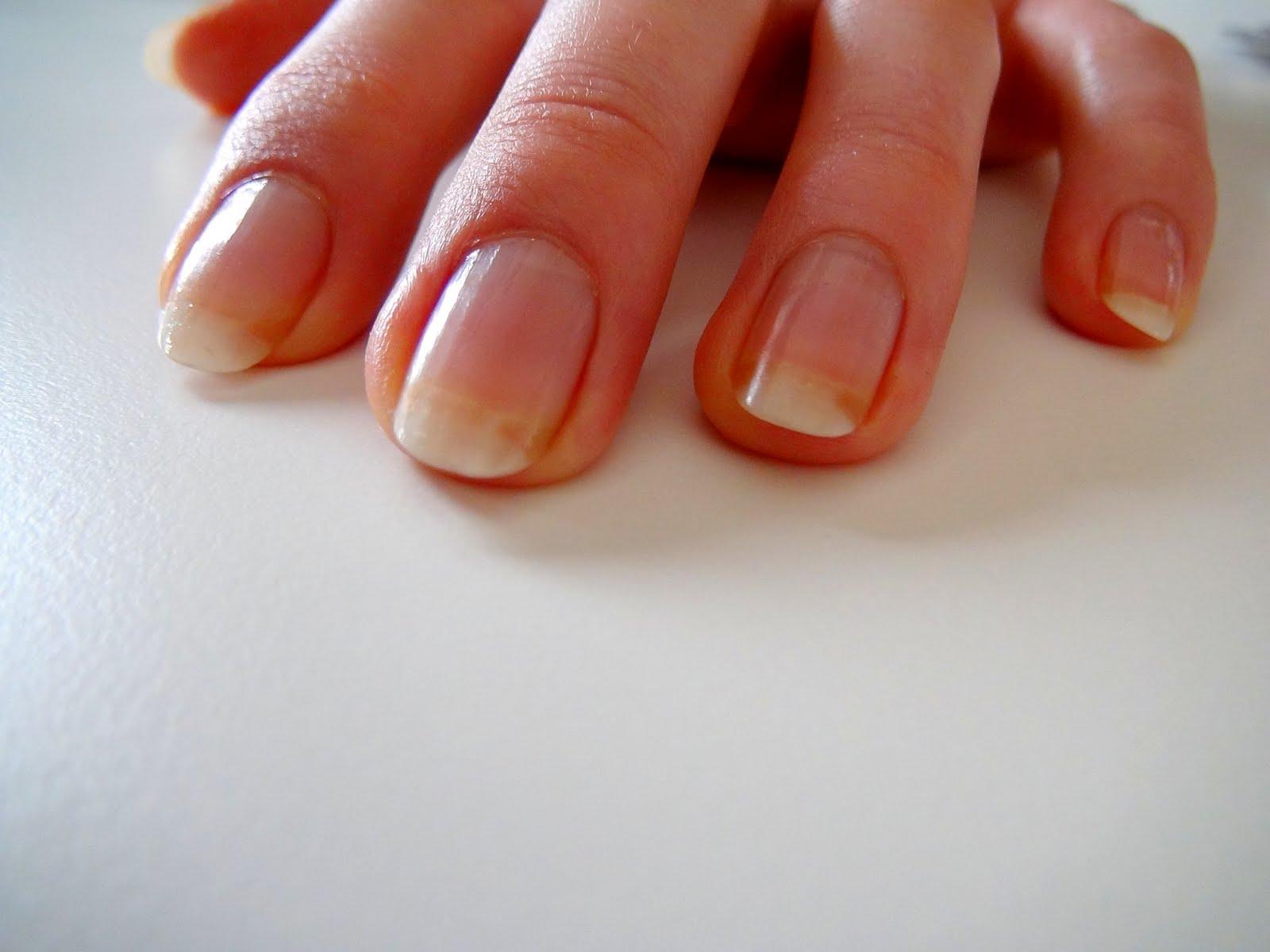 Ярко желтые пятна на ногтях рук