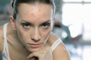 cómo quitar cicatrices naturalmente