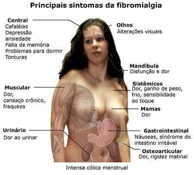 o que é e como tratar a fibromialgia blog Tudo Sobre Tudo