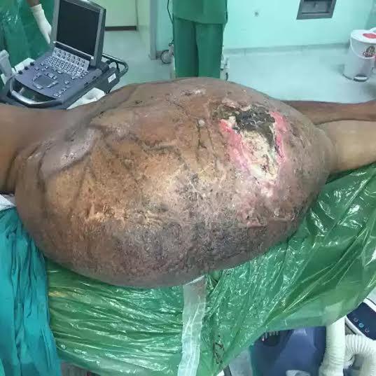 image of World's biggest tumour.