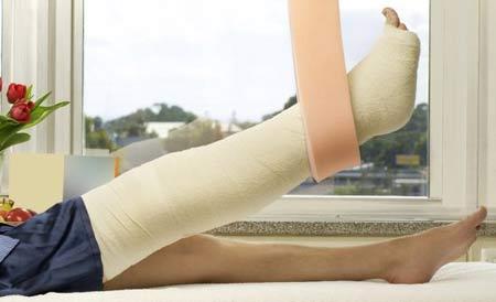 Proses Penyembuhan Retak Pada Tulang