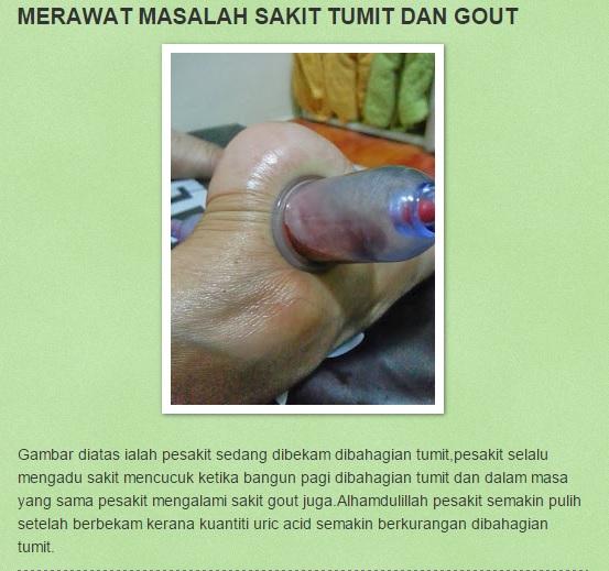 Bekam untuk Gout (selain titik sunnah)