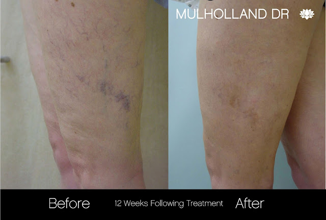 Before and after leg vein treatments at SpaMedica Toronto