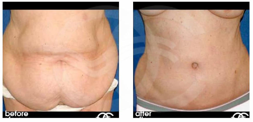 Plastic And Cosmetic Surgery How To Handle Excess Skin After Weight