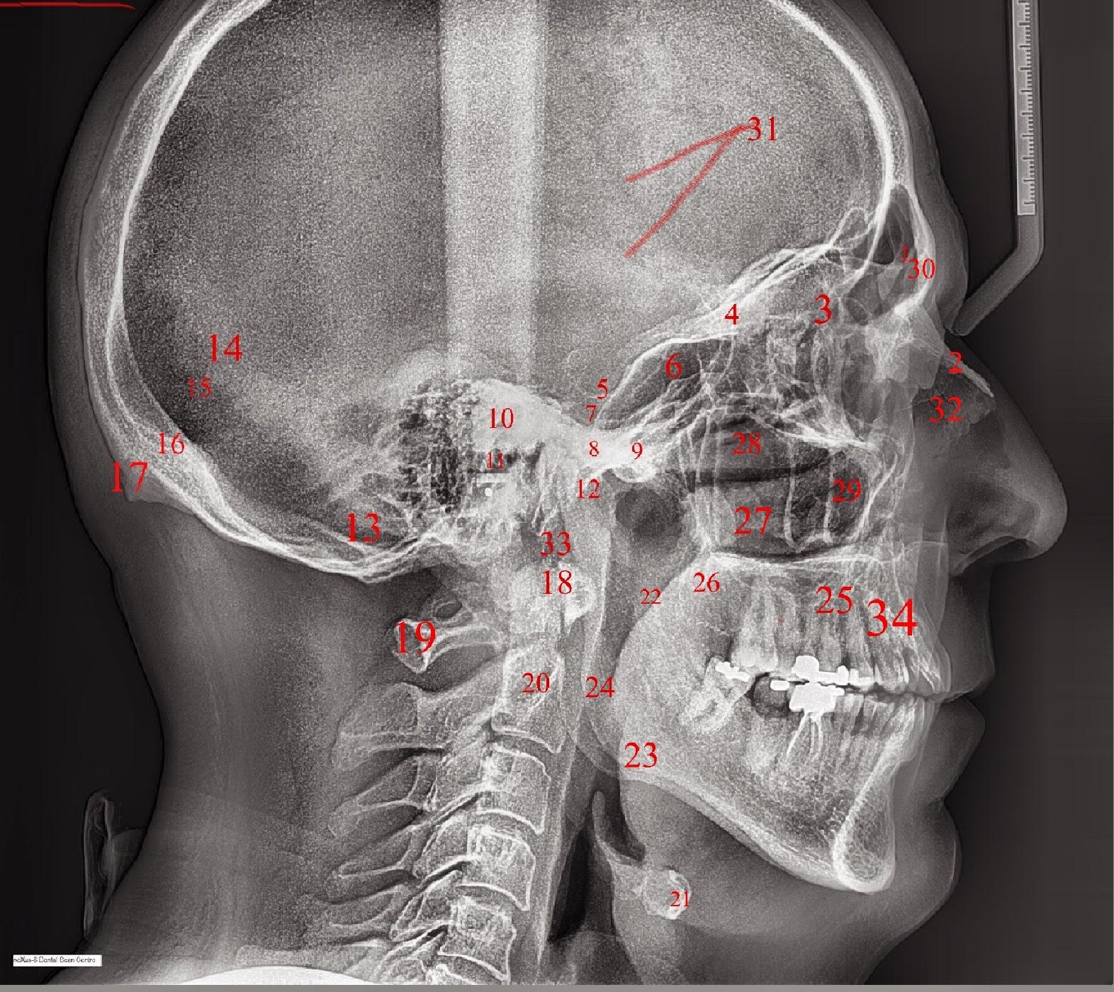 E-Anatomía Odontológica: Grupo 7 correcion(3) de la radiografia lateral