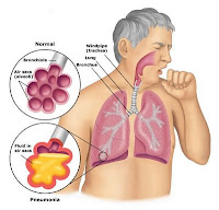 Nursing-Pneumonia-Diagnosis-for-Pneumonia.jpg
