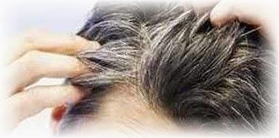 Cara Mengatasi Rambut Beruban Sebelum Usia