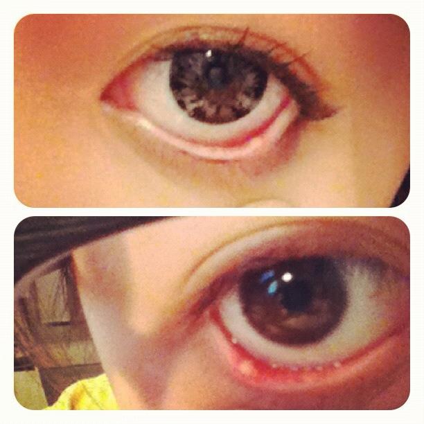 how to fix a stye in my eye
