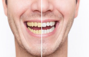 Tips Cara Alami Mengatasi Gigi Kuning Dan Bau Mulut Terbaru 2014