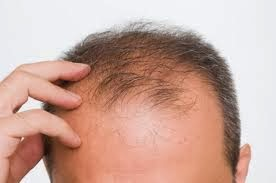 Pattern baldness (androgenetic alopecia)   Pattern baldness is a short time of growing hair, and hair that grows not thick or strong. With existing growth cycle, hair roots that grow more shallow and much easier to fall out. Hereditary factors play a role. The presence of family history of androgenetic alopecia increases your risk of baldness. Descendants also have an impact on what age you start experiencing hair loss and speed the formation of new hair, and broad patterns of your baldness.