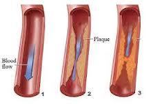 bahaya kolesterol tinggi bagi tubuh manusia