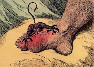 Ubat mujarab rawat penyakit gout