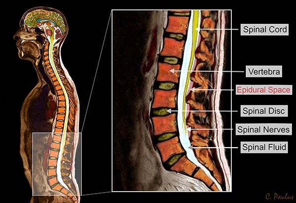 Sagittal Color MRI of the Lumbar Spine Anatomy