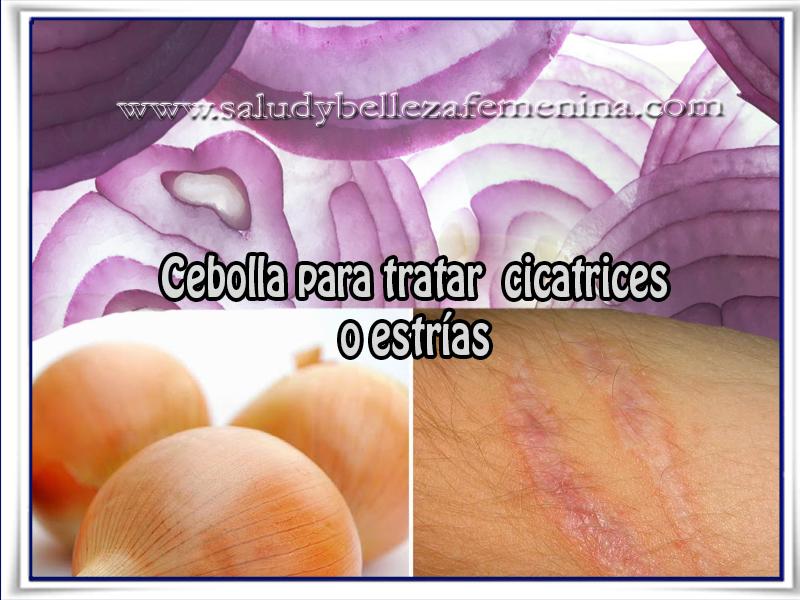 Cuidados de la piel, belleza, cebolla, cicatrices, estrías