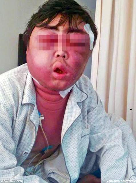 http://asalasah.blogspot.com/2015/07/digigit-nyamuk-wajah-pria-ini-bengkak.html